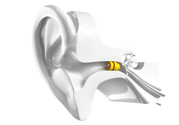 Pic_Lyric_Ear_Model_Glossy_Color.png